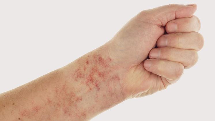 a testet vörös foltok hólyagok és viszketés borítja