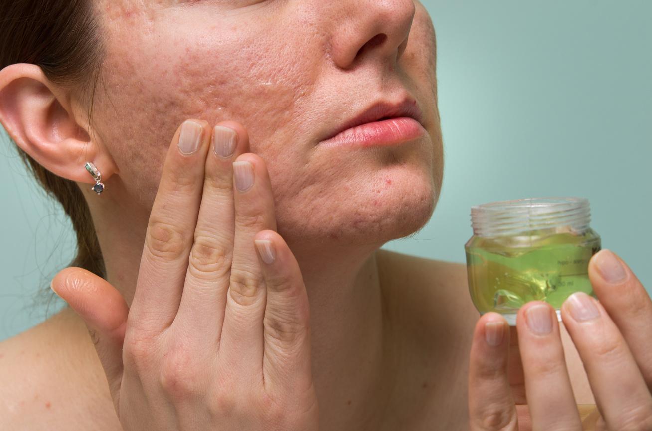 hogyan lehet gyógyítani az arcon lévő vörös foltokat vörös folt a karon a hajtásnál