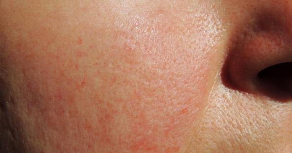 az arcon vörös folt kis hólyagokkal amikor vörös foltok és hámlás vannak a testen