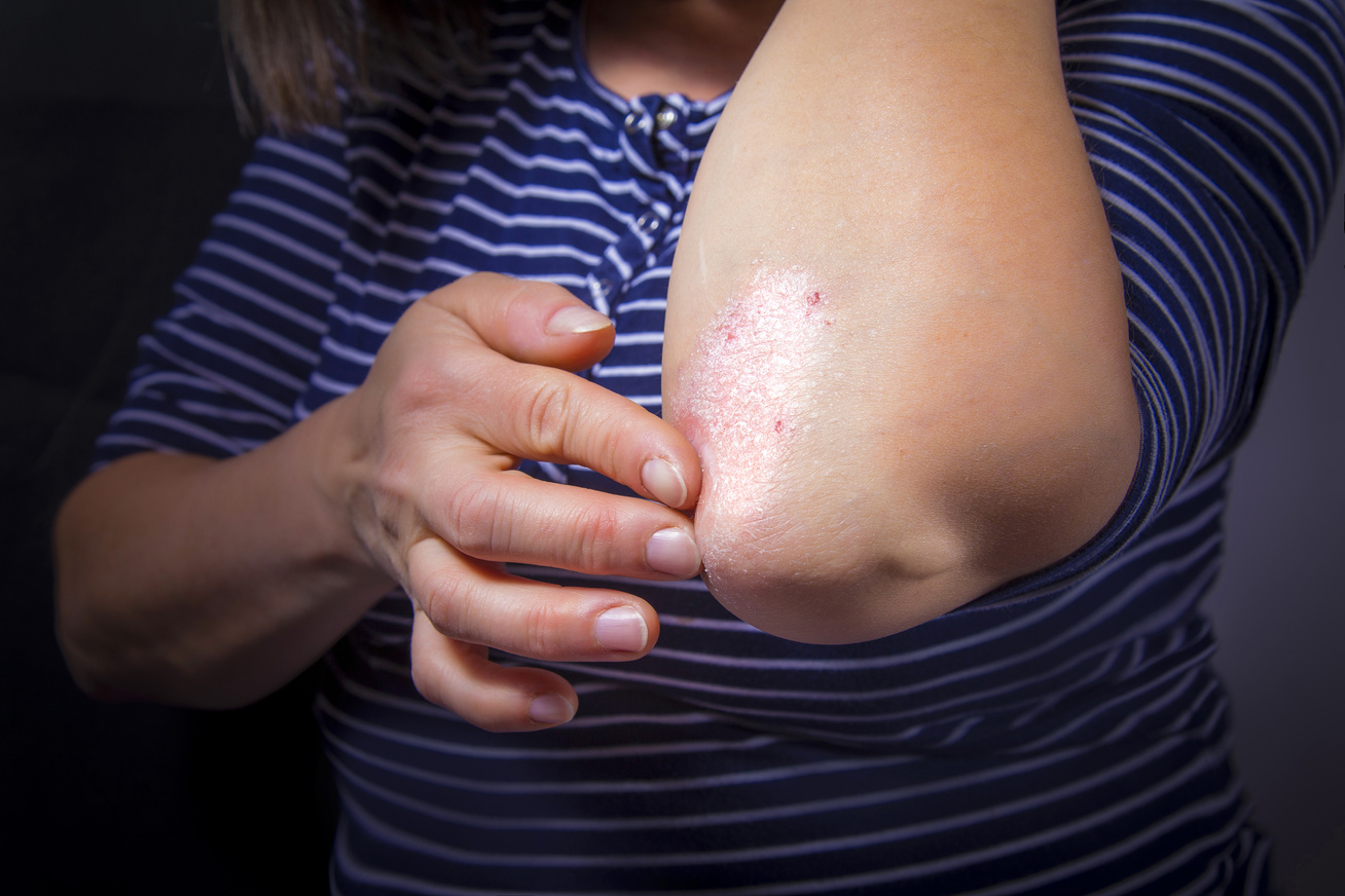 Pikkelysömör (psoriasis) tünetei, kezelése - Súlypont Ízületklinika