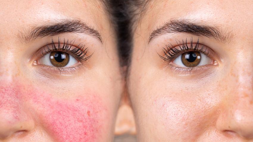 hogyan lehet gyógyítani az arcon lévő vörös foltokat vörös foltok a lábakon és viszketés
