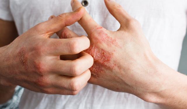 pikkelysömör 50 évesen hogyan kell kezelni milyen kenőcs segít az arcon lévő vörös foltoktól
