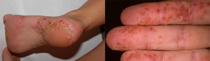 népi gyógymódok pikkelysömörhöz a kezeken és a lábakon