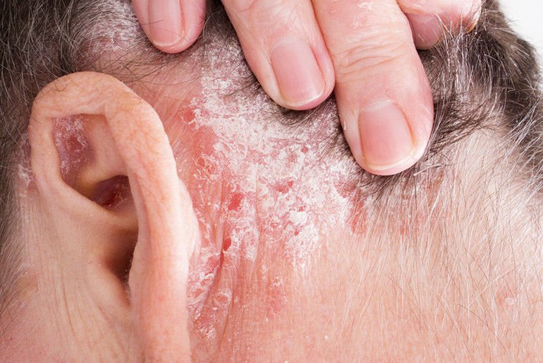 pikkelysömör népi gyógymódok a fejbőrt