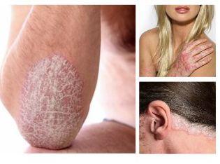 hogyan lehet otthon gyorsan eltávolítani a vörös foltokat az arcon légyölő galóca kezeli a pikkelysömör