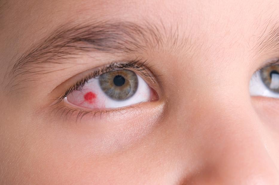 vörös pikkelyes folt a szem alatt